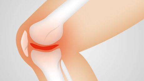 Knee Pain Relief At Home